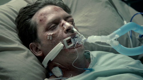 Daniel Holden in coma